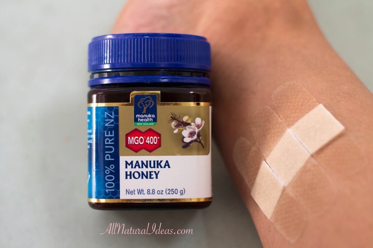 Manuka honey to treat skin wounds quickly