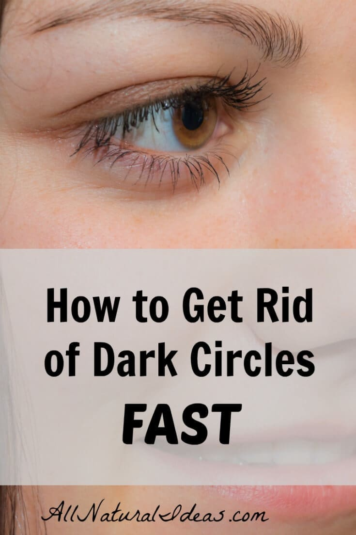 How to eliminate under eye dark circles fast