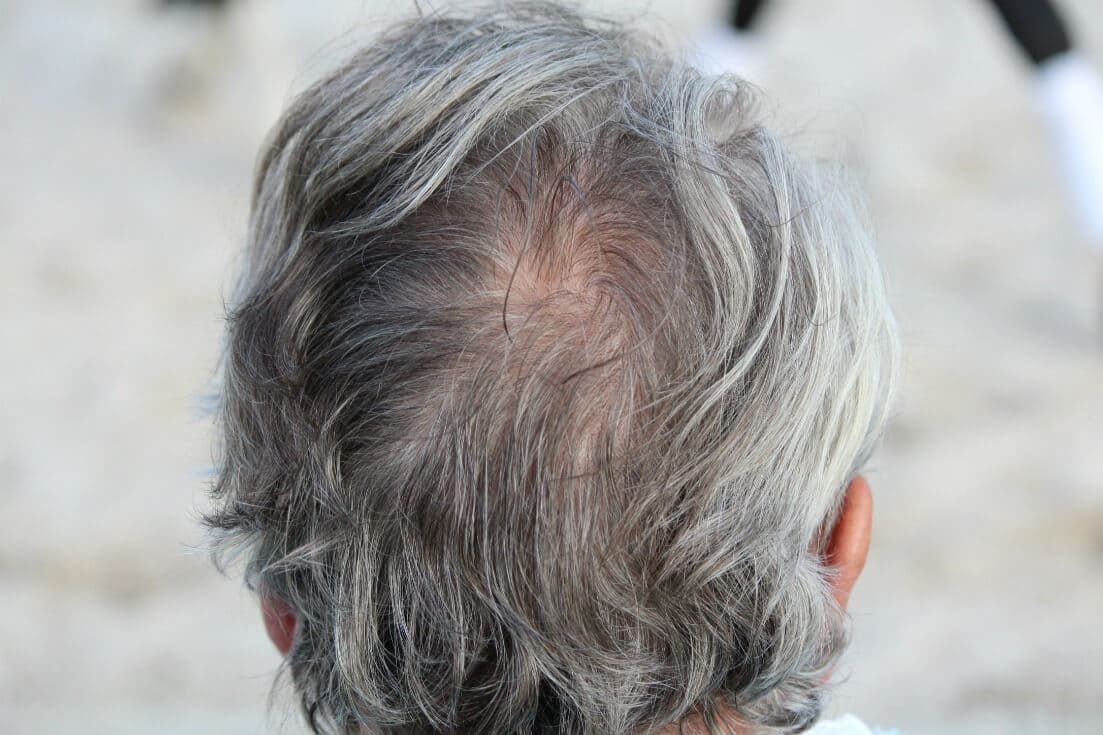 Gray hair pill? Natural remedies for gray hair.
