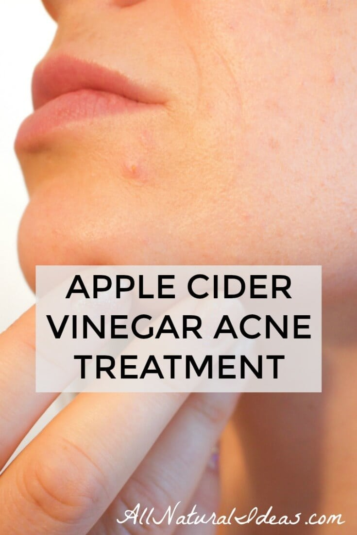 Chronic acne or acute breakouts can be depressing. For those looking for an all-natural solution, apple cider vinegar acne treatment may be effective.
