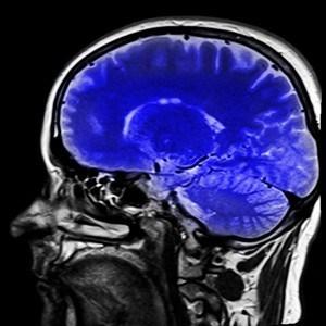 brain-health-intermittent-fasting-benefits