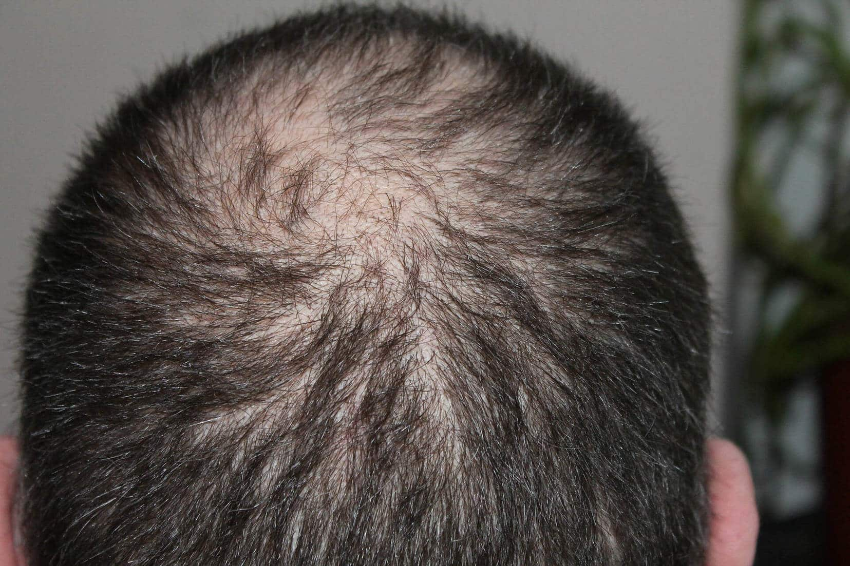 Stop or reduce hair loss naturally
