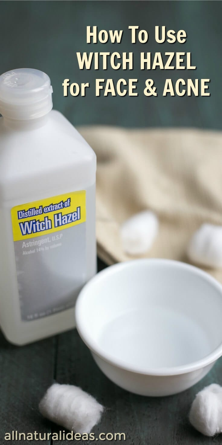 Witch hazel uses for face include treating acne. But, did you know that this topical solution can be used for more beauty routines? | allnaturalideas.com