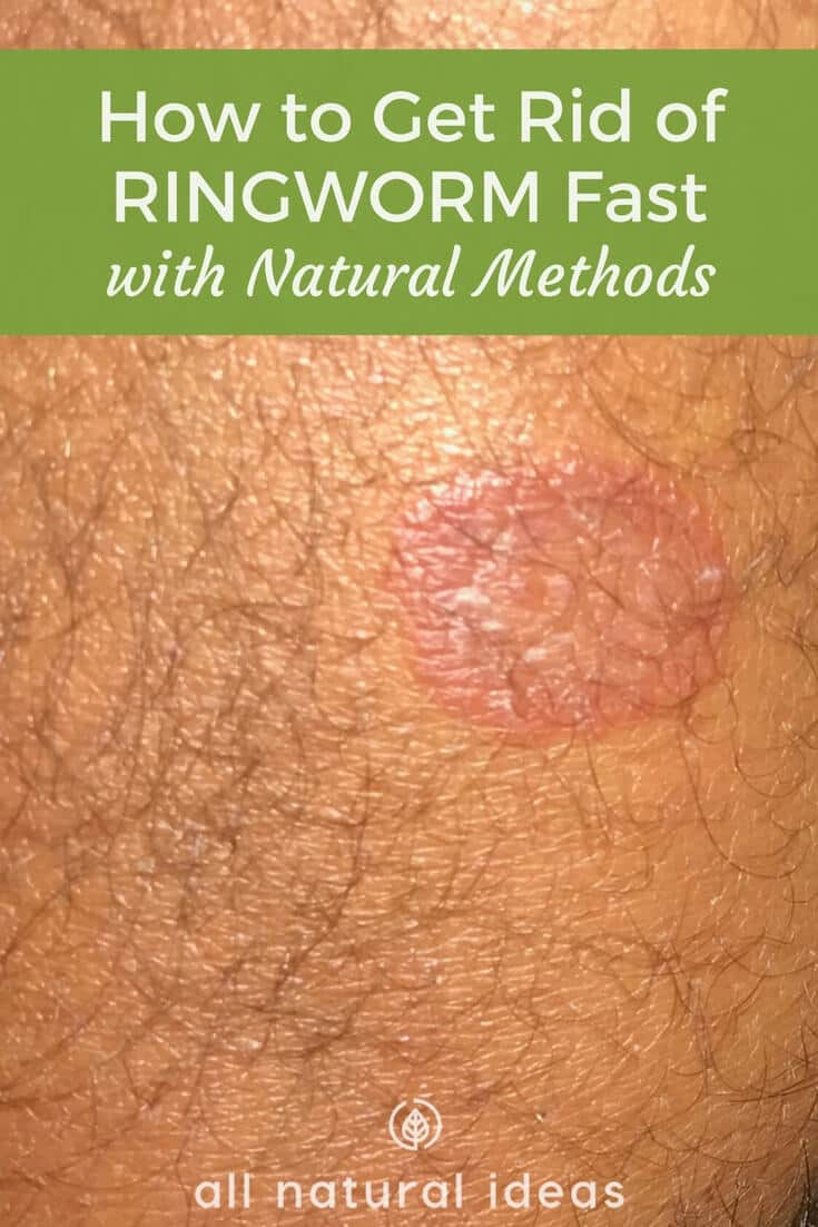 How to get rid of ringworm fast naturally