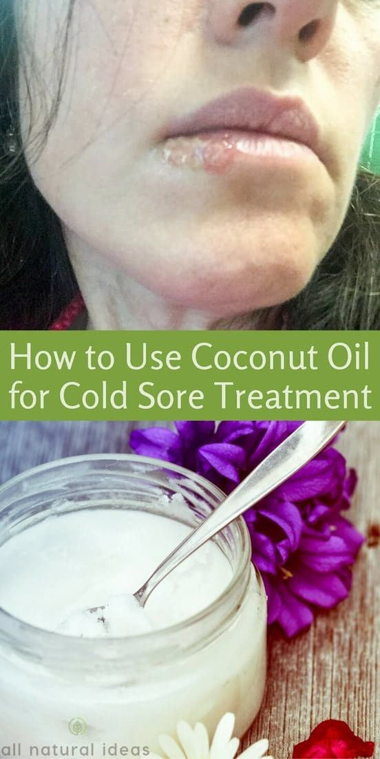 Is coconut oil cold sore treatment really effective? Is it backed by research studies or is it just another hyped up use of trendy coconut oil? | allnaturalideas.com