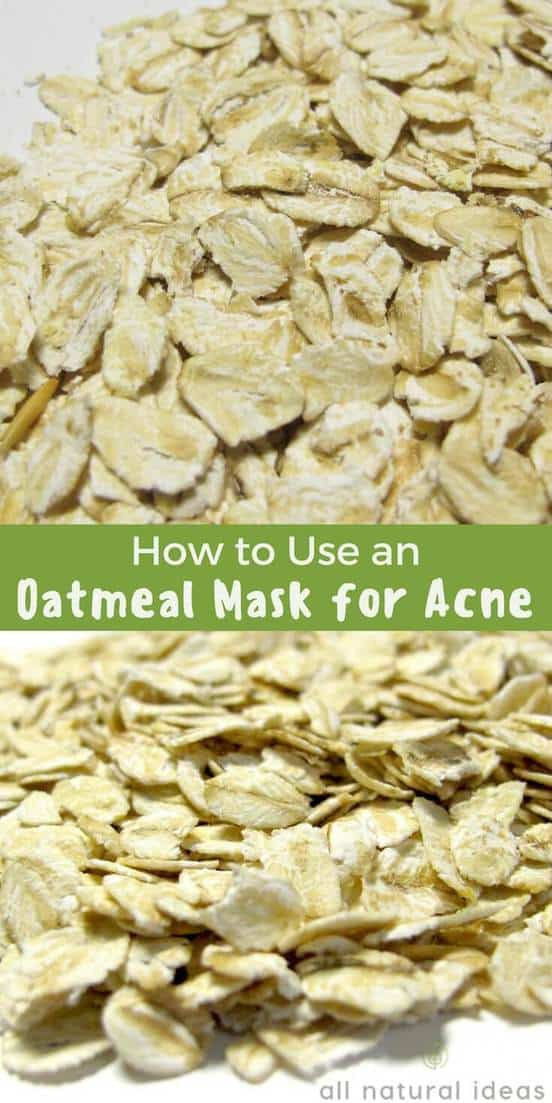Using a DIY oatmeal mask for acne might sound weird. But if you understand the science behind why it fights acne, it makes perfect sense. Plus, it's cheap! | allnaturalideas.com