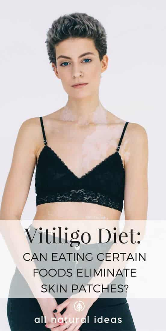 Vitiligo diet may reduce or even eliminate blotchy, white patches. But certain foods, even ones that are considered healthy have to be avoided.