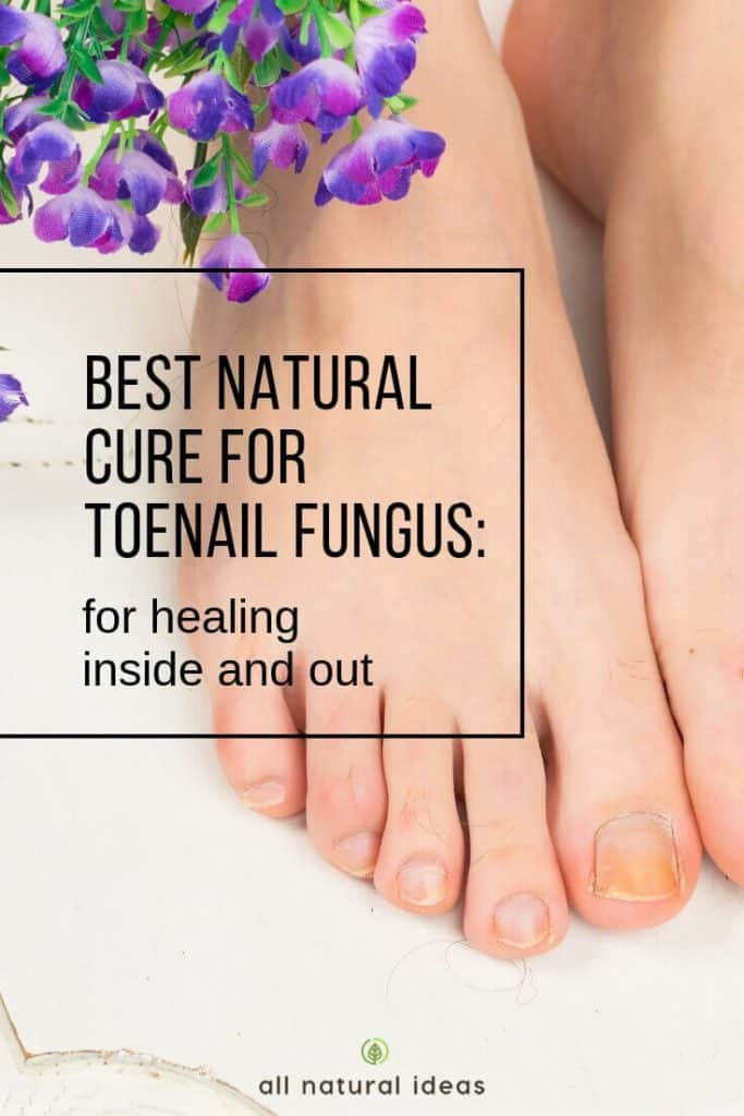 Looking for the best natural cure for toenail fungus? Think about treating it from the inside out, too.