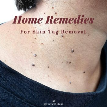 They might not be a serious medical issue, but they're unsightly. If you've got them, here are somehome remedies for skin tags removal.